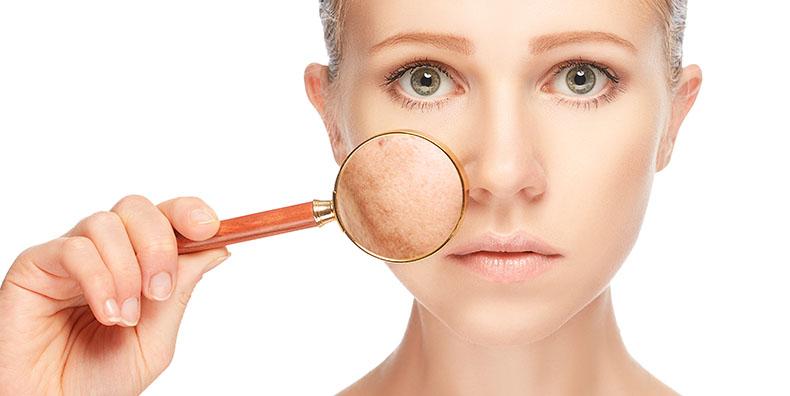 Facial scar revision London
