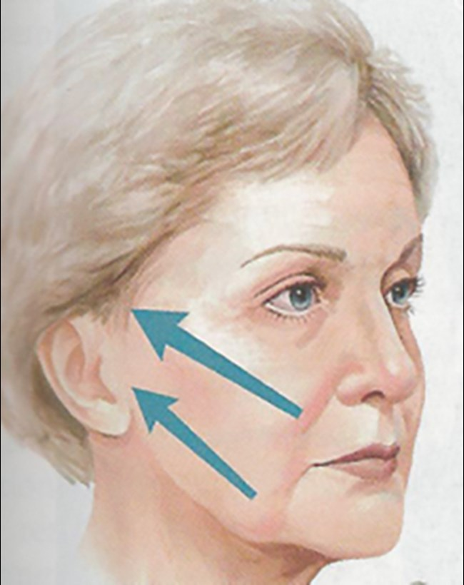 Vectors of pull in a SMAS facelift