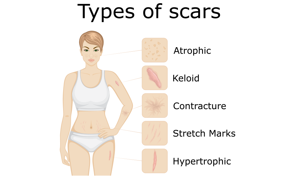 types of scars