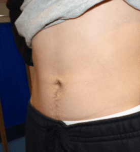 belly button surgery after