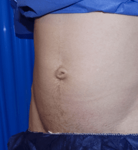 belly button surgery before