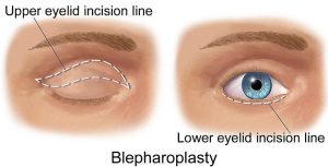 blepharoplasty incisions