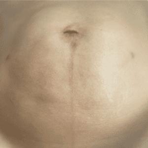 bodytite abdomen after