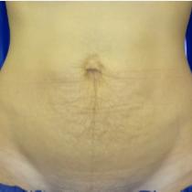 bodytite abdomen before