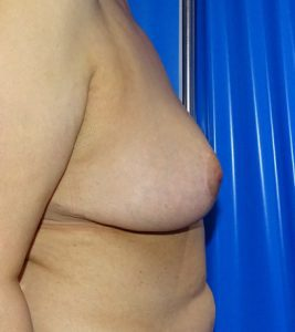 breast reduction after side view