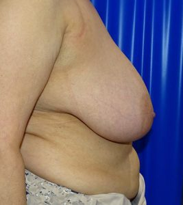 breast reduction before side view