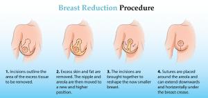 breast reduction procedure