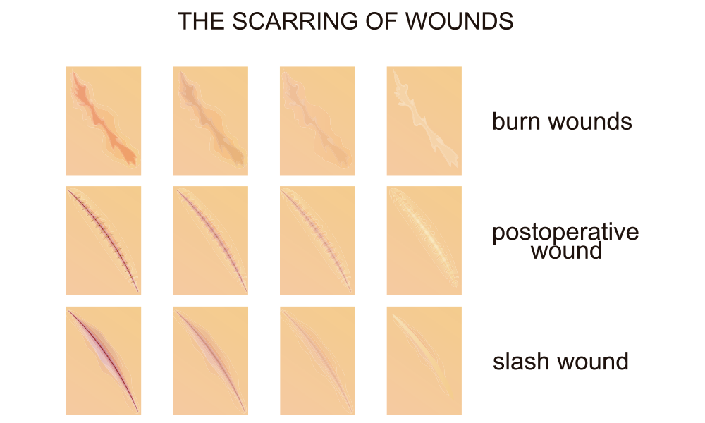 causes of scars