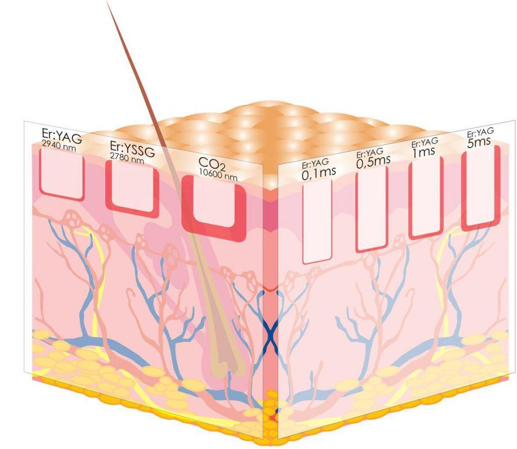 Er:YAG vs CO2 laser tissue effects