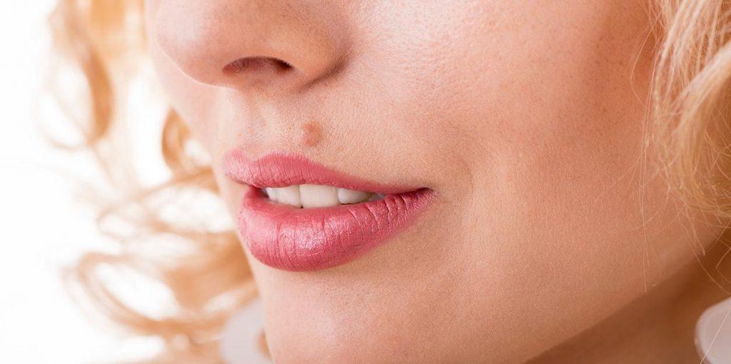 facial skin lesion removal london
