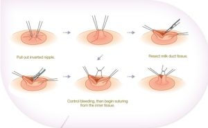 inverted nipple correction procedure