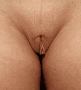 unilateral labiaplasty before