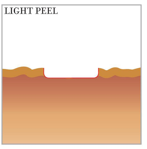 laser resurfacing light peel