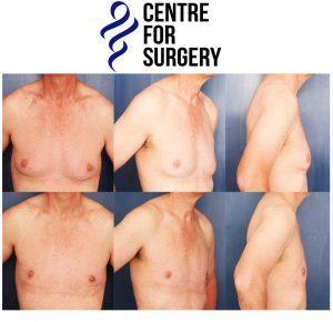 Gynecomastia (breast reduction) in London