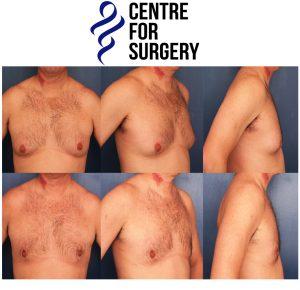Gynecomastia examples