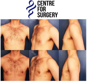 London Gynecomastia before and after