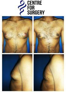 Gynecomastia images