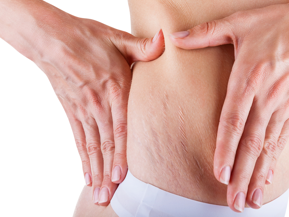 stretch mark removal in london