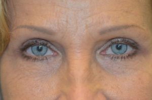 London blepharoplasty case study