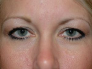 London blepharoplasty results