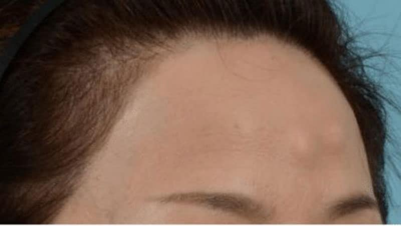 forehead osteoma removal