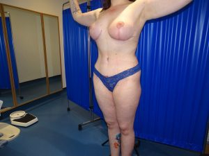 breast uplift after