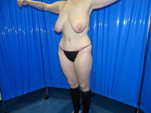 breast uplift before
