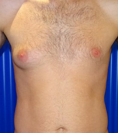 Before-Gynecomastia 3