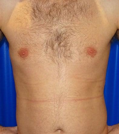 After-Gynecomastia 3