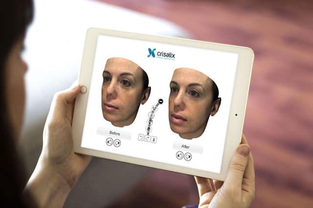 Crisalix 3D imaging