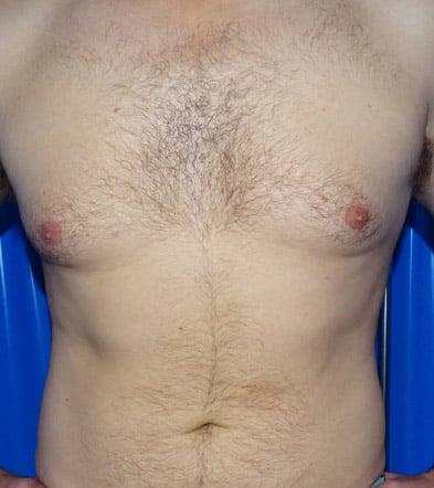 Before-Gynecomastia 1