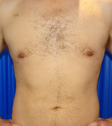 After-Gynecomastia 1