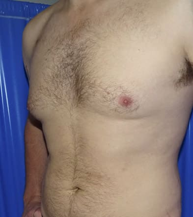 Before-Gynecomastia 2