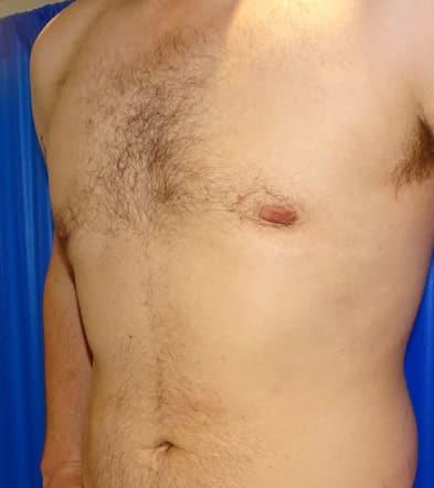 After-Gynecomastia 2