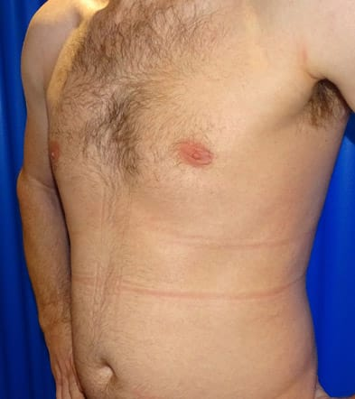 After-Gynecomastia 4