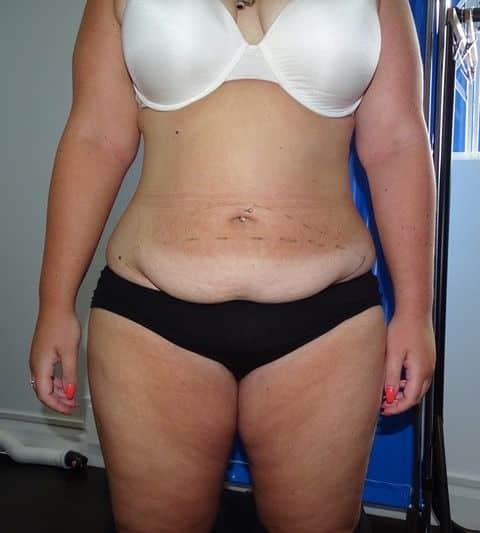 Before-Full abdominoplasty