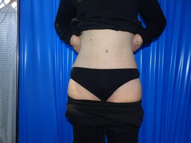 After-Full abdominoplasty