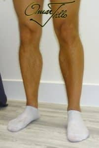 calf implants and calf augmentation after