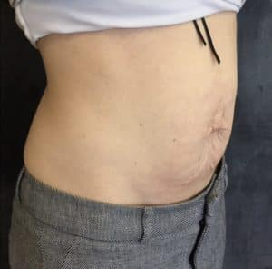non surgical fat reduction london