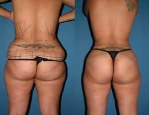 Brazilian Butt Lift London