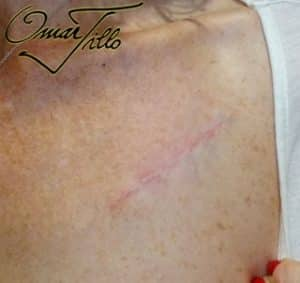 surgical tattoo removal after