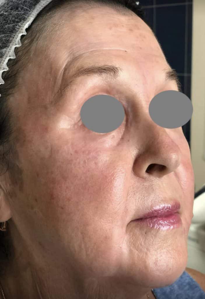 fully ablative Erbium laser skin resurfacing after