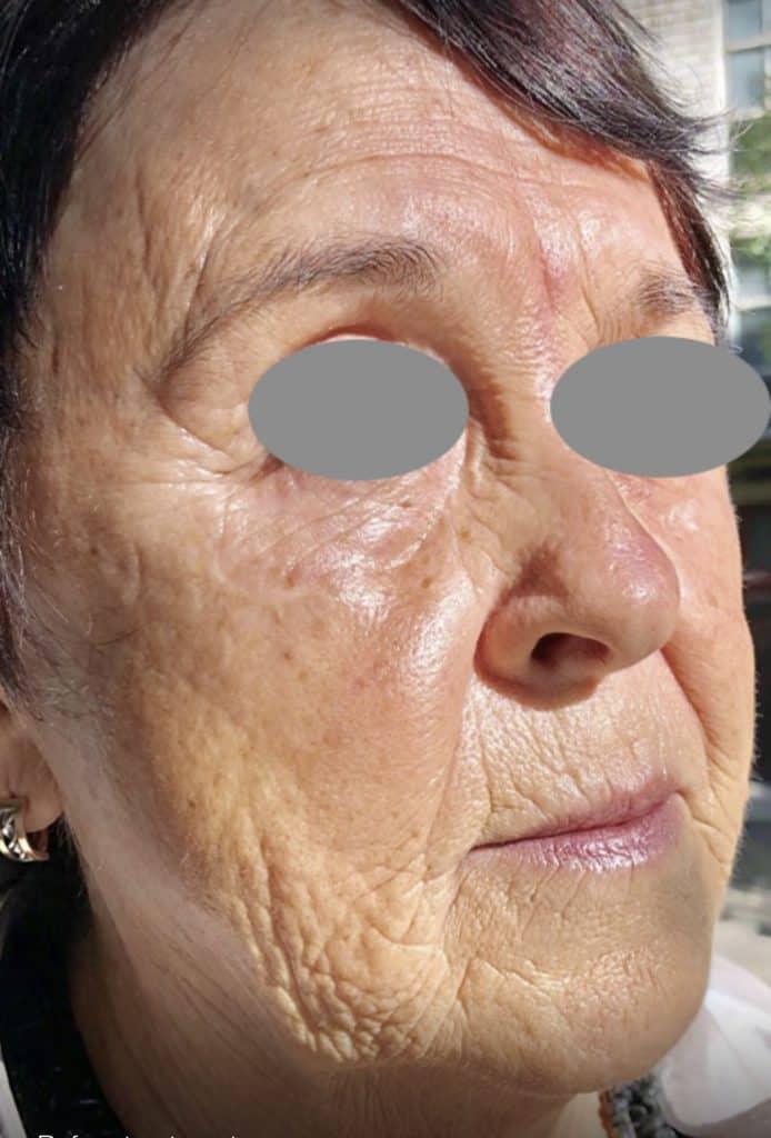 fully ablative Erbium laser skin resurfacing before