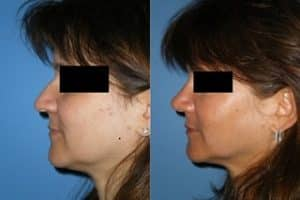 rhinoplasty north London