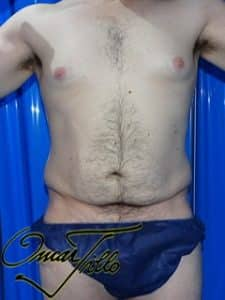 male tummy tuck before