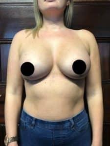 Breast augmentation prices