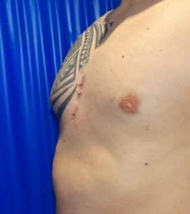 pectus implant after