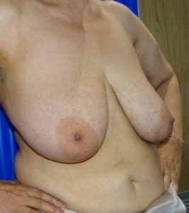 breast reduction london before