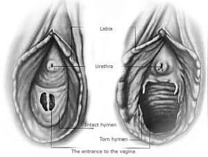 Hymen repair London
