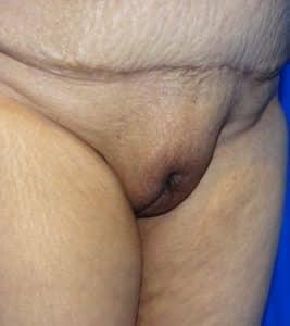 mons pubis liposuction before